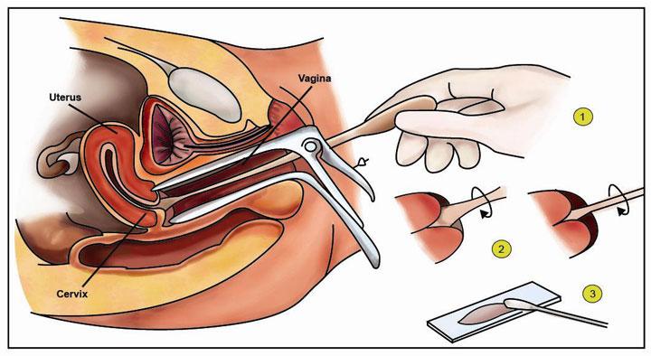 การตรวจโรค มะเร็งปากมดลูก