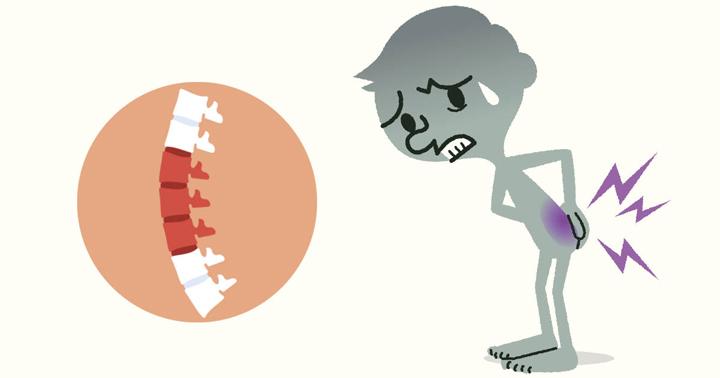 ความเสี่ยงต่อการเกิดโรคปวดหลังส่วนล่าง