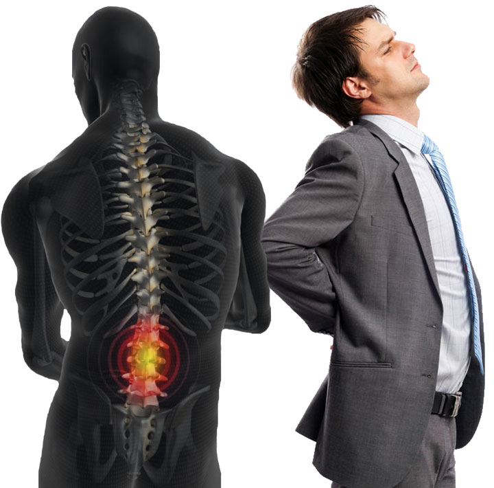 ปวดหลังไม่ได้เกิดจากกระดูกเคลื่อน