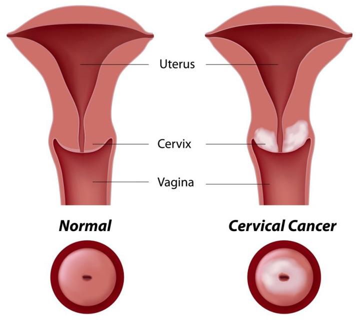 มะเร็งปากมดลูกคืออะไร