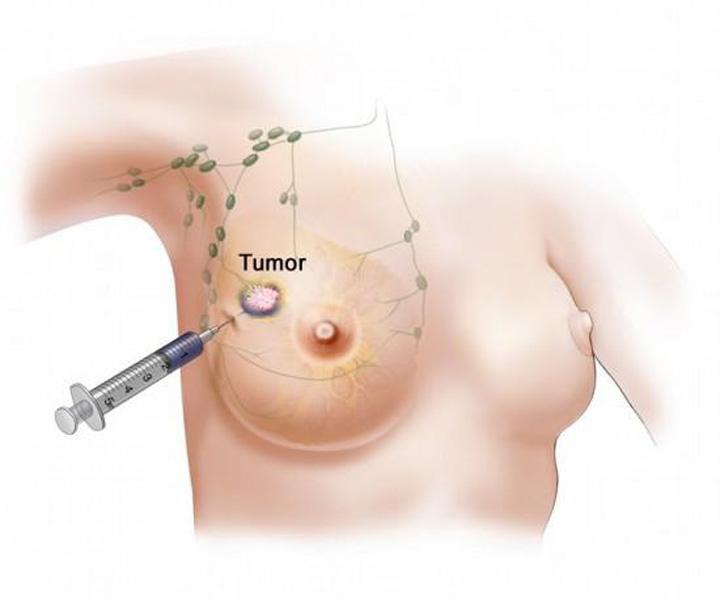 มะเร็งเต้านมที่แพร่กระจาย