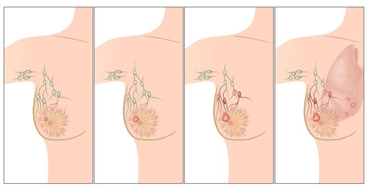 ระยะการเกิดมะเร็งเต้านม