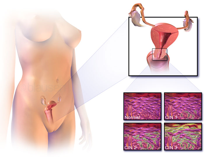 ลดไขมันโดยเฉพาะไขมันสัตว์ มะเร็งปากมดลูก