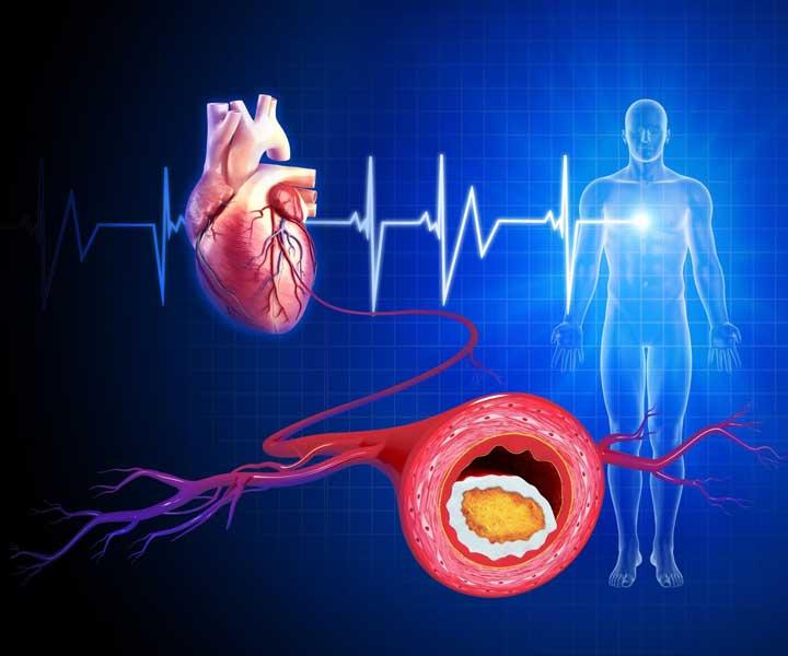 อาการจากโรคหลอดเลือดแดงหัวใจแข็ง