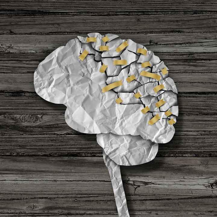 โรคประสาทเสื่อมหลายที
