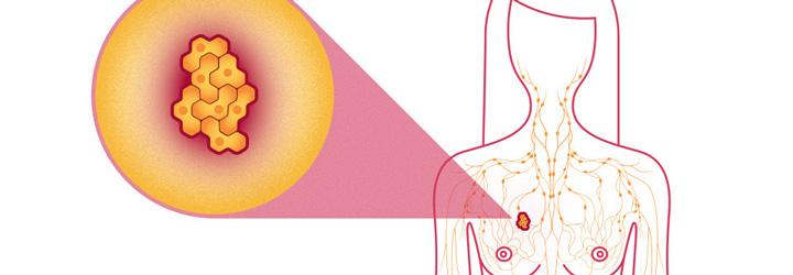 ไขทุกปัญหา-ข้อข้องใจเกี่ยวกับมะเร็งเต้านม-Breast-Cancer---feat