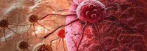 20-วิธี-หลีกหนีจากโรคมะเร็งในชีวิตประจำวัน---feat