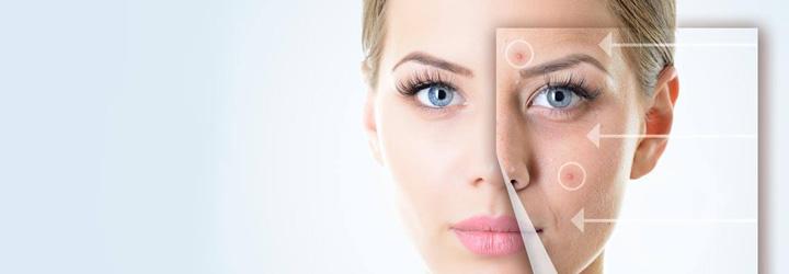 ต้องทำอย่างไรถึงจะรักษาสิวอุดตัน-(Comedonal-acne)-ได้-feat
